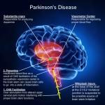 بیماری پارکینسون با سلولهای بنیادی درمان میشود